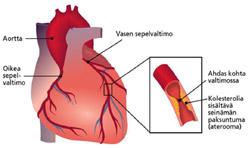 Holter Nauhoitus