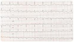 Sydänlihastulehdus Kokemuksia